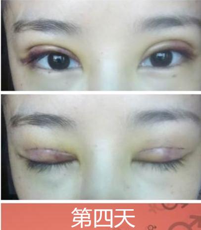 双眼皮手术的恢复过程图
